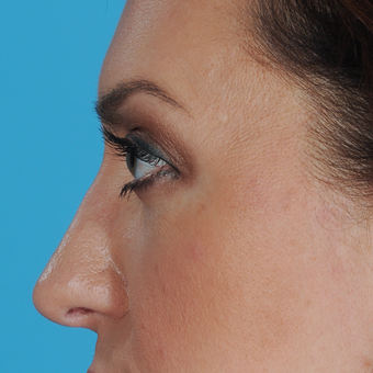 35-44 year old woman treated with Rhinoplasty after 3038287