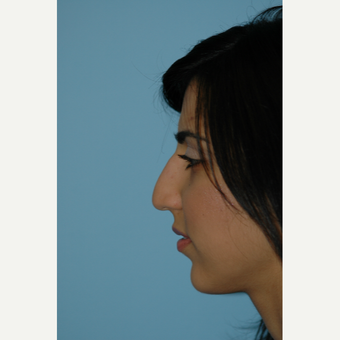 25-34 year old woman treated with Rhinoplasty before 3332344