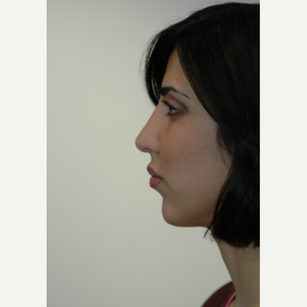 25-34 year old woman treated with Rhinoplasty after 3332344