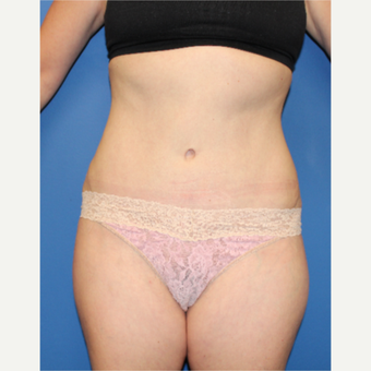 45-54 year old woman treated with Tummy Tuck after 3631188