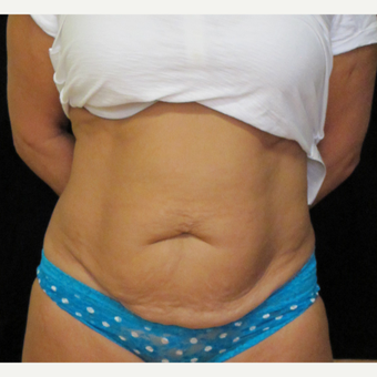48 year old woman treated with Tummy Tuck before 3319424