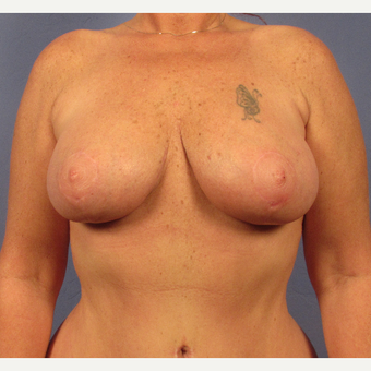 45-54 year old woman treated with Breast Lift after 3095881