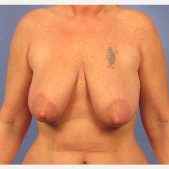 45-54 year old woman treated with Breast Lift before 3095881