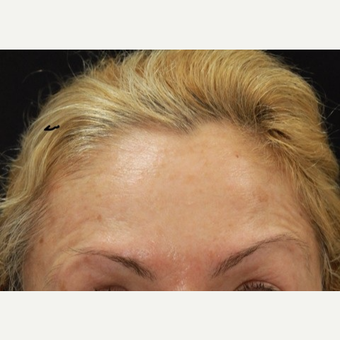 48 year old female treated with Botox for horizontal forehead lines. after 3000907