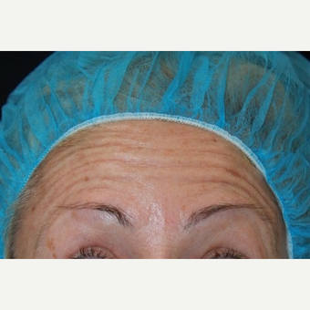 48 year old female treated with Botox for horizontal forehead lines. before 3000907