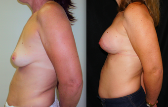 Breast Lift with Implants, Mastopexy before 1139098