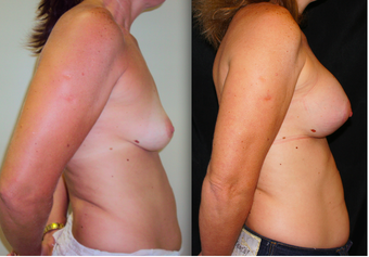 Breast Lift with Implants, Mastopexy after 1139098