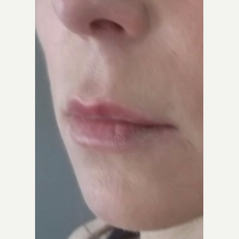 45-54 year old woman treated with Lip Lift before 2976619