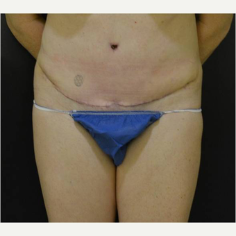 48 year old woman treated with Tummy Tuck after 3727026