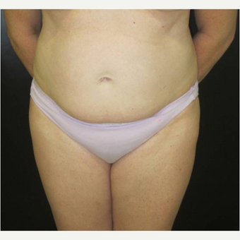 48 year old woman treated with Tummy Tuck before 3727026