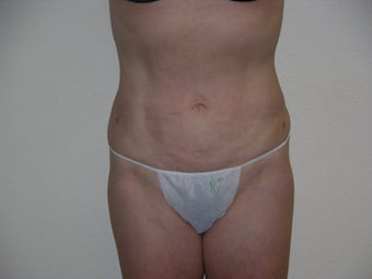 Smartlipo after 327743