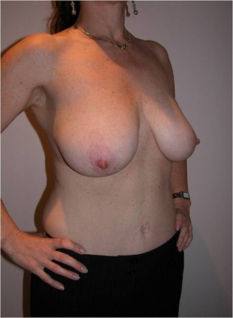 Breast Reduction 996497