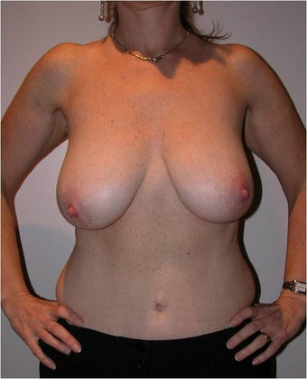 Breast Reduction before 996497