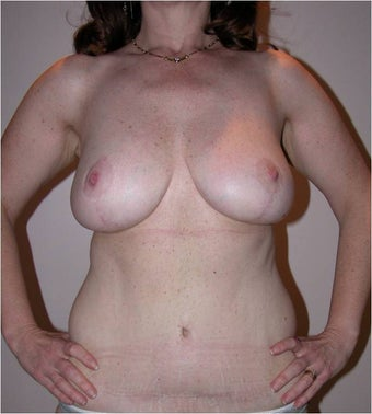 Breast Reduction after 996497