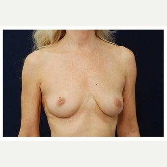 45-54 year old woman treated with Inspira Breast Implants before 1860044