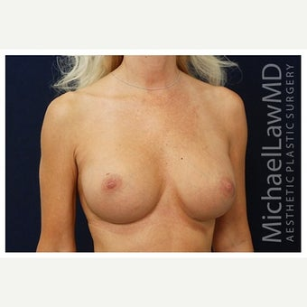 45-54 year old woman treated with Inspira Breast Implants after 1860044