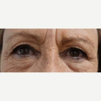 65-74 year old woman treated with Eye Bags Treatment before 3493753