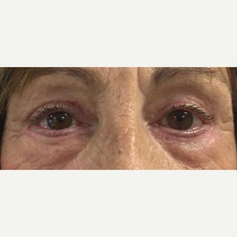 65-74 year old woman treated with Eye Bags Treatment after 3493753