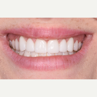 25-34 year old woman treated with Porcelain Veneers after 3732678