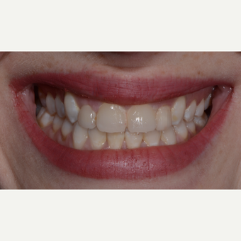 25-34 year old woman treated with Porcelain Veneers before 3732678
