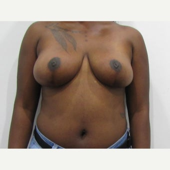 27 year old woman treated with anchor incision Breast Reduction after 2550399