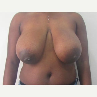 27 year old woman treated with anchor incision Breast Reduction before 2550399