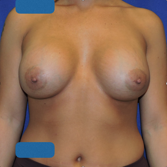 25-34 year old woman treated with Breast Augmentation after 3747374