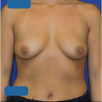 25-34 year old woman treated with Breast Augmentation before 3747374