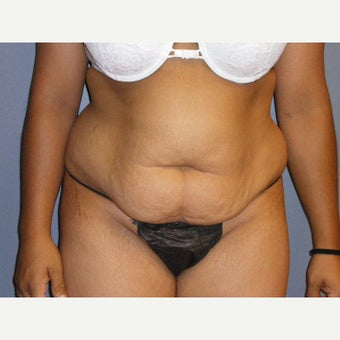 35-44 year old woman treated with Tummy Tuck, she maintained her results seven years after surgery before 1942894