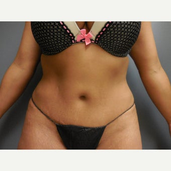 35-44 year old woman treated with Tummy Tuck, she maintained her results seven years after surgery after 1942894