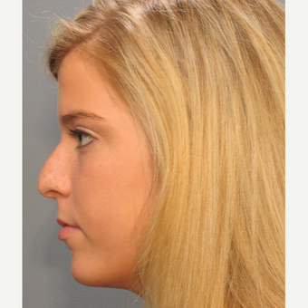 Woman 17 years old or younger treated with Rhinoplasty before 3410872