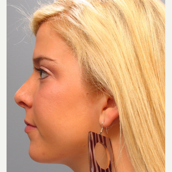 Woman 17 years old or younger treated with Rhinoplasty after 3410872