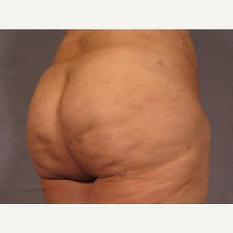 35-44 year old woman treated with Brazilian Butt Lift after 3308512