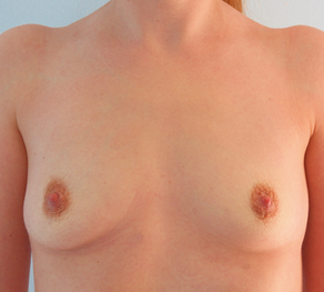 Breast Augmentation before 920101