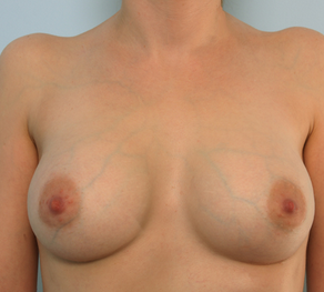 Breast Augmentation after 920101