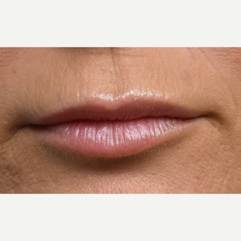 35-44 year old woman treated with Juvederm before 3792016