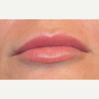 35-44 year old woman treated with Juvederm after 3792016