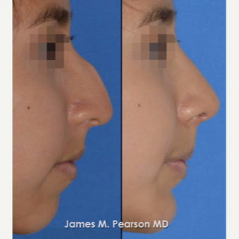 18-24 year old woman treated with Rhinoplasty before 3815219