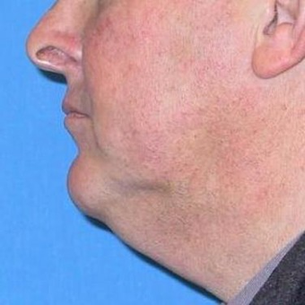 55-64 year old man treated with Neck Lift before 3497059