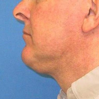 55-64 year old man treated with Neck Lift after 3497059