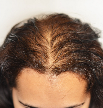 25-34 year old woman treated with Scalp Micropigmentation before 2018685