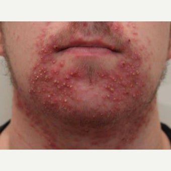 Inflammatory Acne treated with Combination Therapy