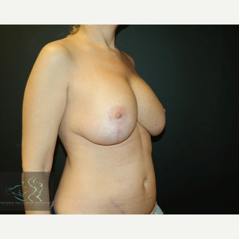 45-54 year old woman treated with Breast Lift with Implants after 3591210