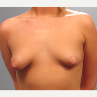 18-24 year old woman treated with Breast Augmentation before 3293842