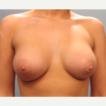 18-24 year old woman treated with Breast Augmentation after 3293842