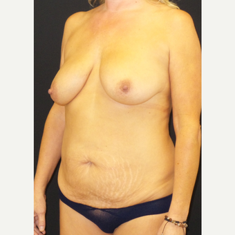 45-54 year old woman treated with Mommy Makeover before 3306121