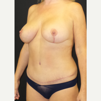 45-54 year old woman treated with Mommy Makeover after 3306121