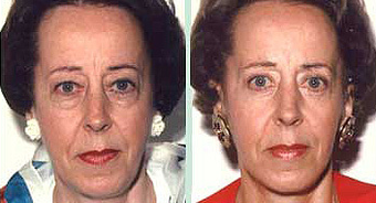 Lower-Lid Blepharoplasty  before 1353993