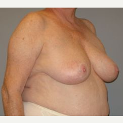 65-74 year old woman treated with Breast Reduction before 3280660