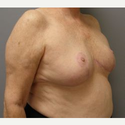 65-74 year old woman treated with Breast Reduction after 3280660